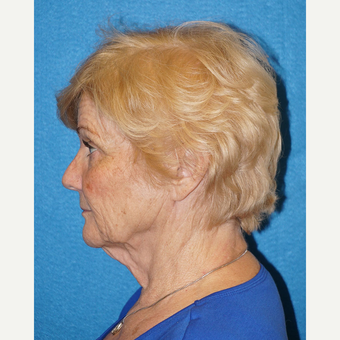 67 year old woman treated with Facelift before 3576596