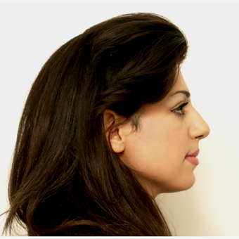 25-34 year old woman treated with Rhinoplasty before 3407888