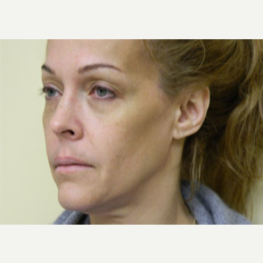 45-54 year old woman treated with Mini Lift and 4 Lid-Blepharoplasty before 3264728