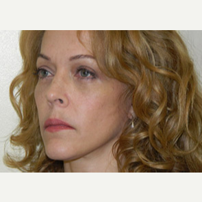 45-54 year old woman treated with Mini Lift and 4 Lid-Blepharoplasty after 3264728