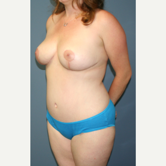 25-34 year old woman treated with Breast Lift after 3453231