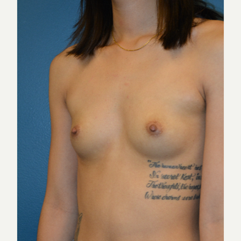 25-34 year old woman treated with Breast Augmentation before 3770679