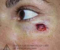 Mohs Surgery of Basal Cell Carcinoma and Recontruction before 315051