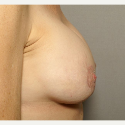 45-54 year old woman treated with Breast Augmentation after 3072433
