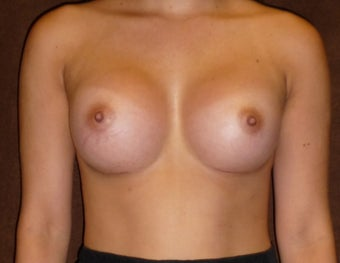 Breast Augmentation after 587788