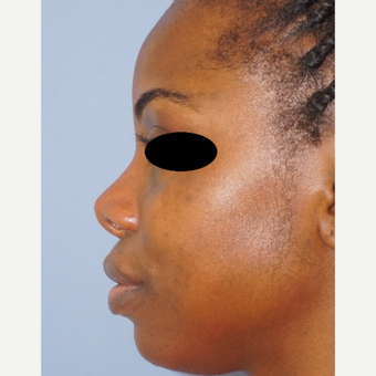 25-34 year old woman treated with Non Surgical Nose Job before 3845970