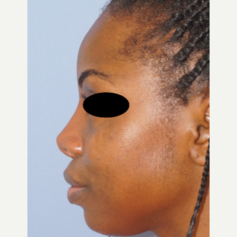 25-34 year old woman treated with Non Surgical Nose Job after 3845970