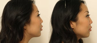 Non-surgical Asian Rhinoplasty before 1181365
