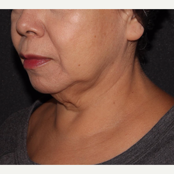 55-64 year old woman treated with Coolmini and Ultherapy before 3669741