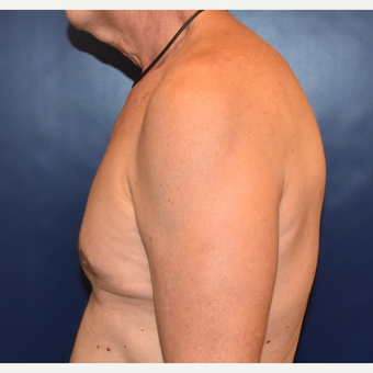 55-64 year old woman treated with Male Breast Reduction after 3384890