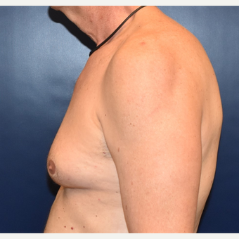 55-64 year old woman treated with Male Breast Reduction before 3384890