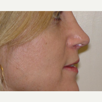 35-44 year old woman treated with Rhinoplasty after 3370781