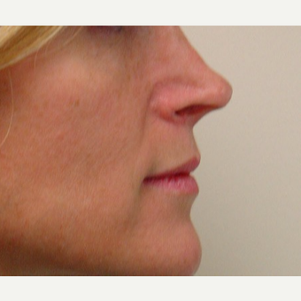 35-44 year old woman treated with Rhinoplasty before 3370781