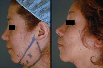 Chin / Neck Liposuction before 996362