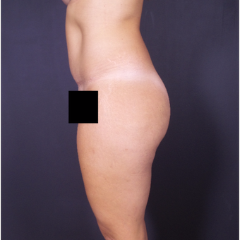 25-34 year old woman treated with Tummy Tuck after 3150027