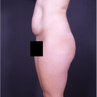 25-34 year old woman treated with Tummy Tuck before 3150027
