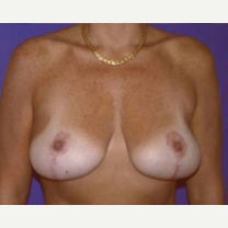 45-54 year old woman treated with Breast Lift after 3423765