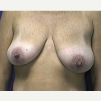 45-54 year old woman treated with Breast Lift before 3423765