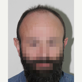 35-44 year old man treated with FUE Hair Transplant before 3522616