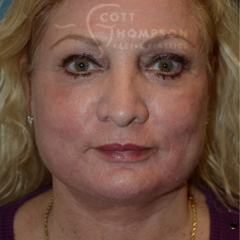 55-64 year old woman treated with Facelift after 3245809