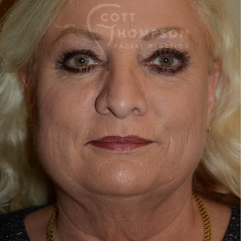 55-64 year old woman treated with Facelift before 3245809