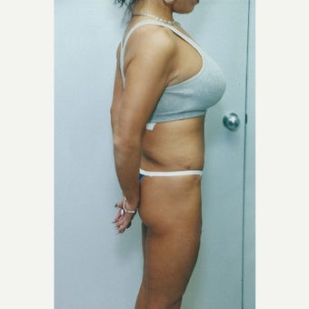 45-54 year old woman treated with Mini Tummy Tuck after 1616194