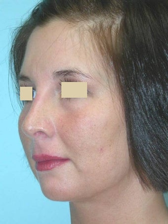 Rhinoplasty after 148588