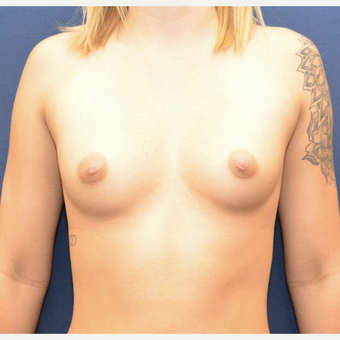 18-24 year old woman treated with Breast Augmentation before 3726809
