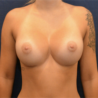 18-24 year old woman treated with Breast Augmentation after 3726809