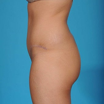 25 year old woman treated with Tummy Tuck after 1792955