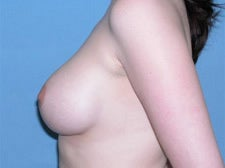18-24 year old woman treated with Breast Augmentation 3743298