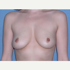 18-24 year old woman treated with Breast Augmentation before 3743298