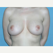 18-24 year old woman treated with Breast Augmentation after 3743298