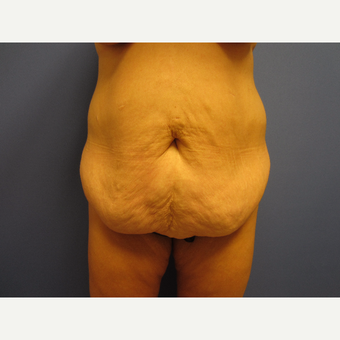 35-44 year old woman treated with Tummy Tuck before 3577609