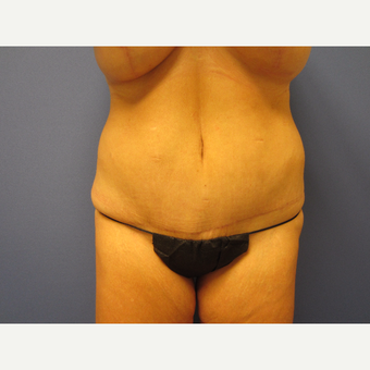 35-44 year old woman treated with Tummy Tuck after 3577609
