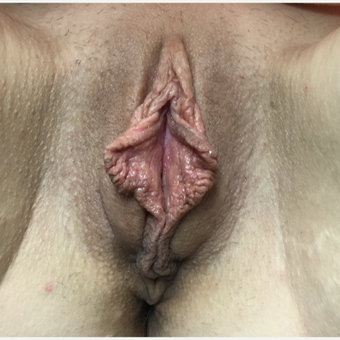 25-34 year old woman treated with Labiaplasty before 3679361