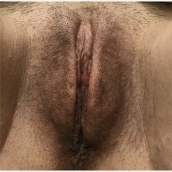 25-34 year old woman treated with Labiaplasty after 3679361