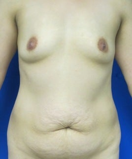 Mommy Makeover (silicone breast augmentation and tummy tuck) before 781153