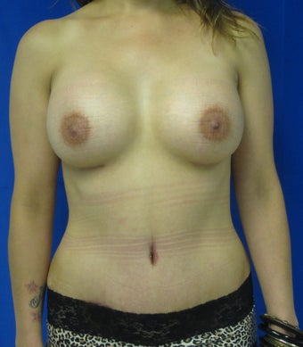 Mommy Makeover (silicone breast augmentation and tummy tuck) after 781153