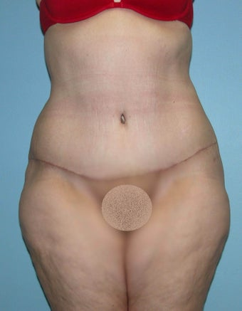Abdominoplasty after Gastric Bypass after 1302252