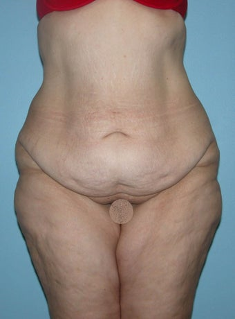 Abdominoplasty after Gastric Bypass before 1302252