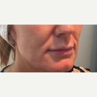 35-44 year old woman treated with Injectable Fillers after 3364380
