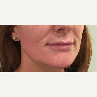 35-44 year old woman treated with Injectable Fillers before 3364380