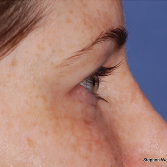 35-44 year old woman treated with Eyelid Surgery before 3624014