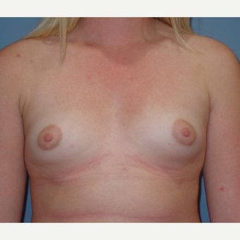 18-24 year old woman treated with Breast Augmentation before 3059634