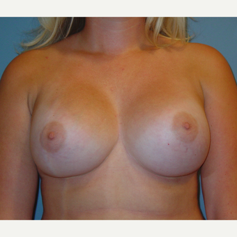 18-24 year old woman treated with Breast Augmentation after 3059634
