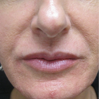 Lip Enhancement after 2311367