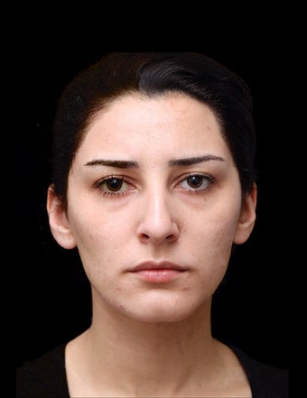 25-34 year old woman treated with Non Surgical Face Lift before 2998327