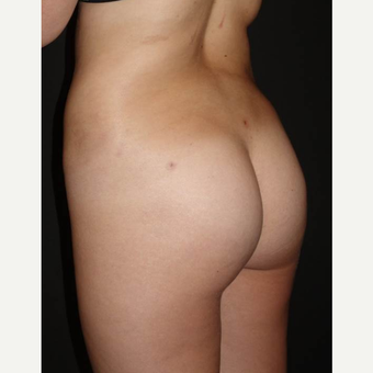 18-24 year old woman treated with Brazilian Butt Lift after 3014099