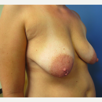 35-44 year old woman treated with Breast Lift with Implants before 3514103